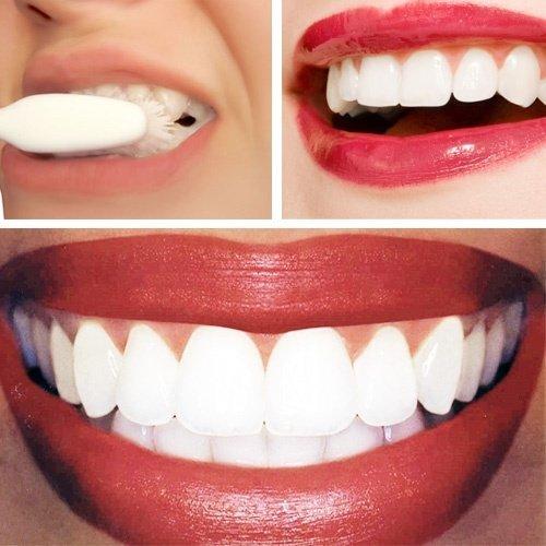 Cum să-ți albești dinții acasă cu bicarbonatul de sodiu