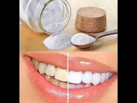 Bicarbonatul de sodiu: bun sau rau pentru dintii nostri?